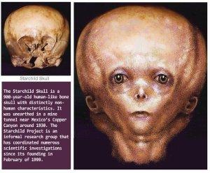 starchild_skull_by_tonio48-d59rcis